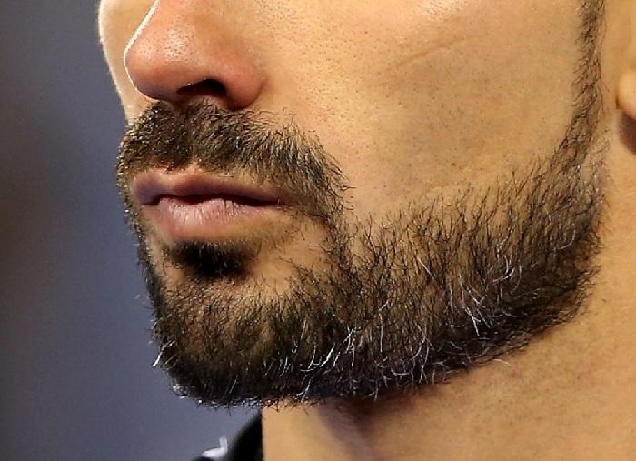 Autorização para transexual tirar barba pelo SUS é premiada