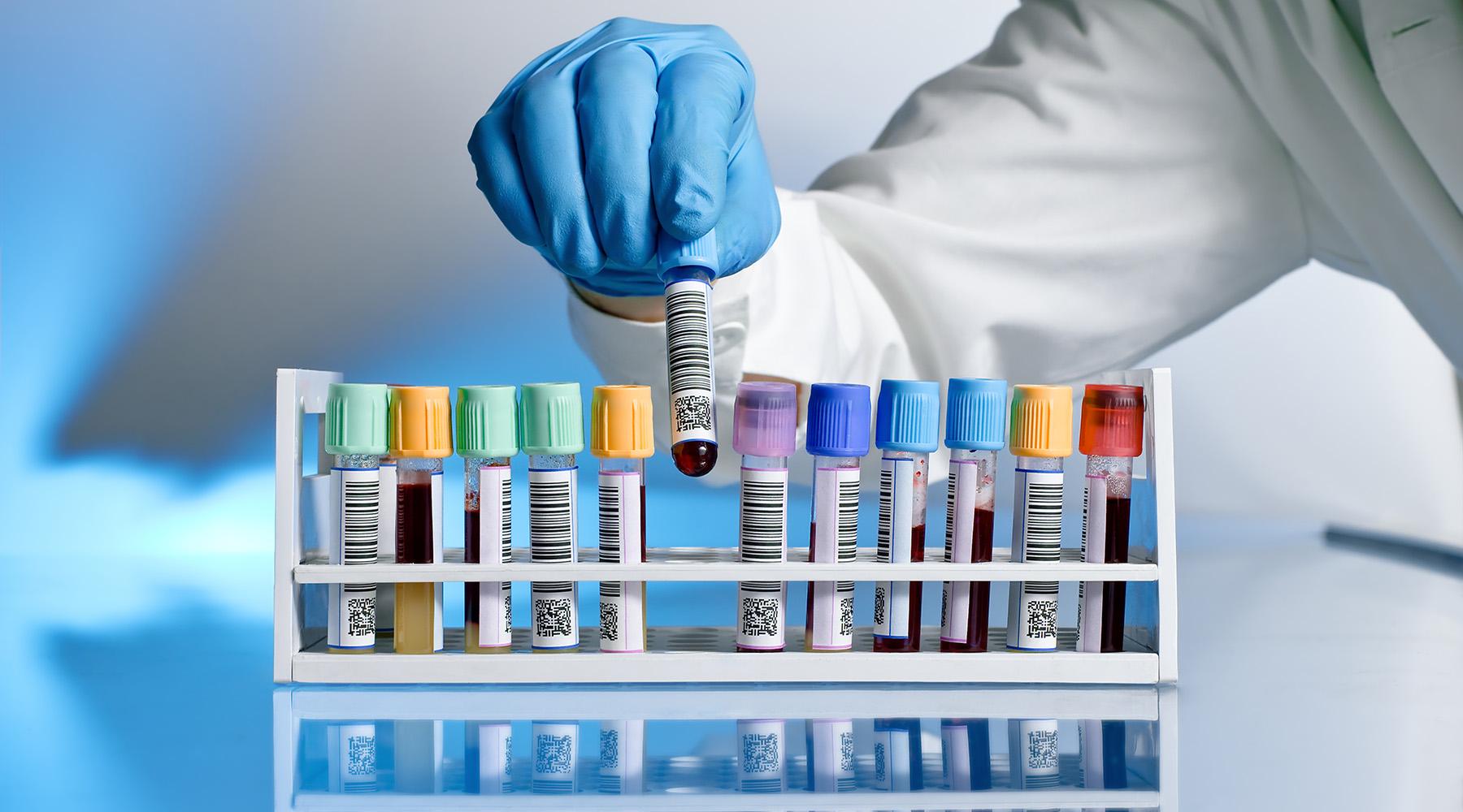 Transmitido pelo sexo sem camisinha, vírus HTLV-1 pode causar complicações sérias