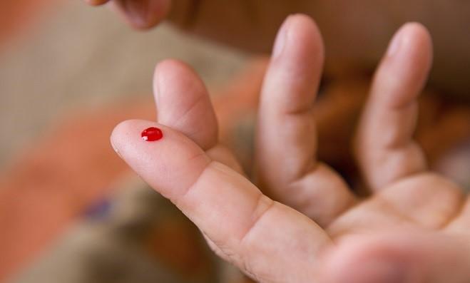 teste hiv farmácia